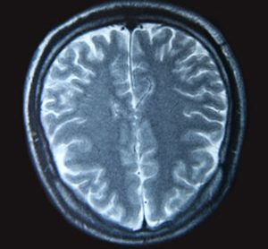 A magnetic resonance imaging scan of the human brain