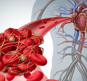 Blood clot deep vein thrombosis Venous thromboembolism pulmonary embolism