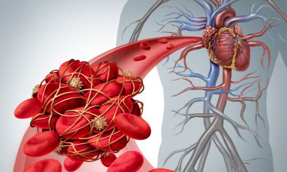 Venous thromboembolism (VTE) therapeutics market set to hit $3.7 billion by 2025