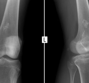 Ewing-sarcoma-xray-knee-scan