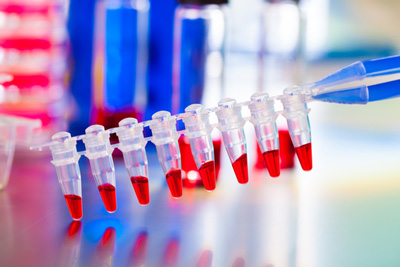 Positive CHMP opinion to extend indication of Kyprolis
