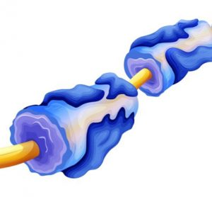 Myelin deterioration multiple sclerosis