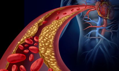 attp-blocked-blood-vessel