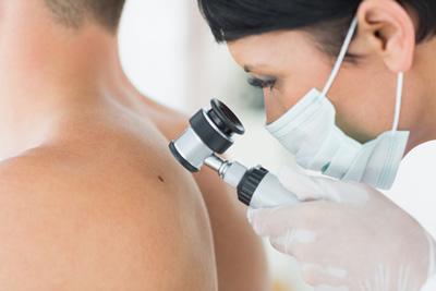advanced melanoma