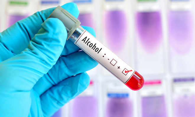 Drug and alcohol testing: An expanding market