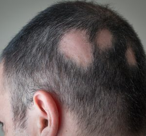 Man with alopecia areata - three bold spots on the side of his scalp/head