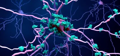 purple neuron surrounded by blue amyloid deposits