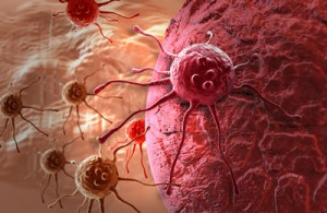 bowel-cancer
