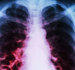 chronic lung disease