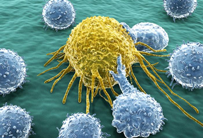 chronic-lymphocytic-leukaemia