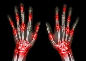 cimzia-arthritis