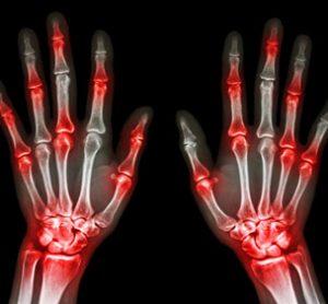 cimzia arthritis x-ray hands bones