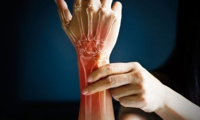 committee-recommends-arthritis-drug