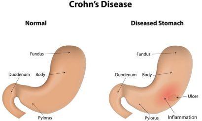 crohns-disease-image