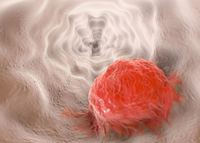 Proton therapy may be better option for patients with