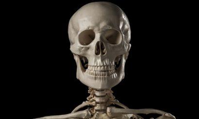 extraskeletal-bone