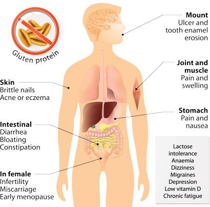gluten-free-coeliac-disease