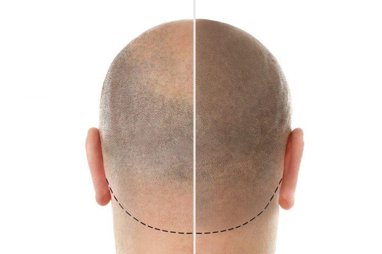 Osteoporosis drug could treat human hair loss