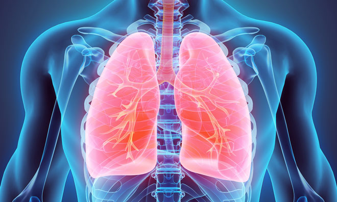 First Japanese patient recruited for acute respiratory distress trial