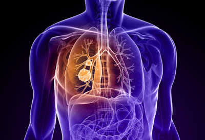 PharmaMar initiates a phase III ATLANTIS study in patients with small cell lung cancer