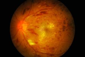 macular-oedema