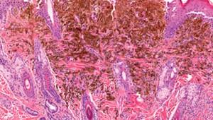 melanoma-scib1