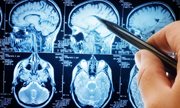 brain shrinkage