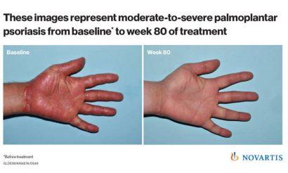 Novartis' plaque psoriasis drug keeps skin clear 4 years