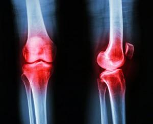 osteoarthritis-hydros-ta