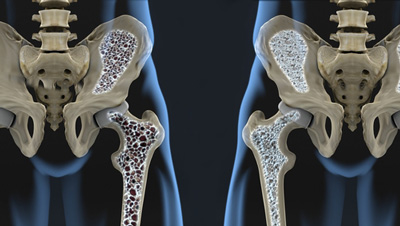 osteoporosis market