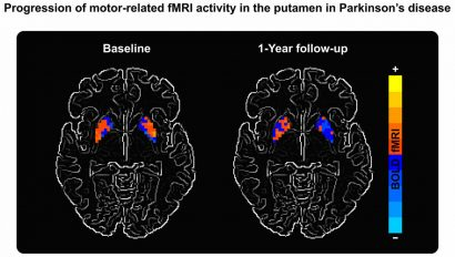 biomarker parkinsons brain imaging