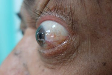 image of a patient with proptosis, or bulging eye