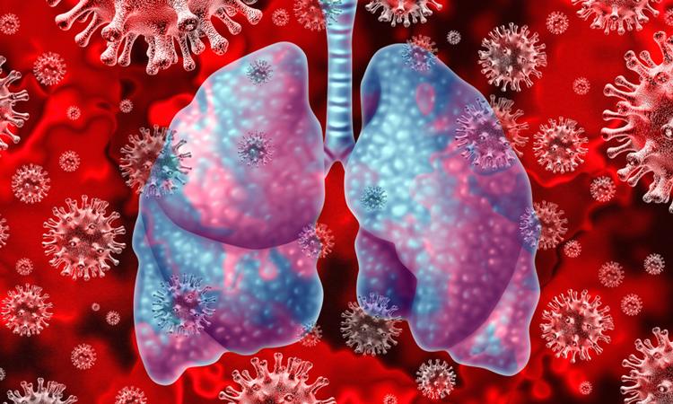 Lungs with coronavirus