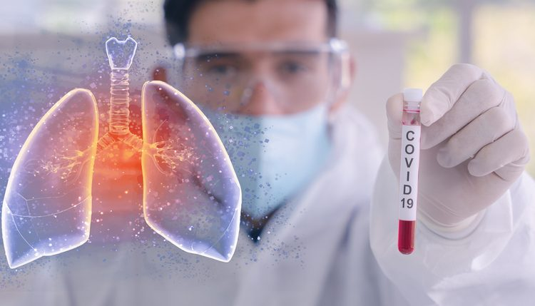 Blood purification device for coronavirus patients granted emergency FDA approval: CytoSorbents CEO