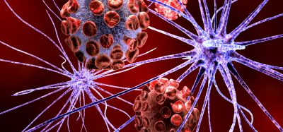 Nerve cell attacked by virus