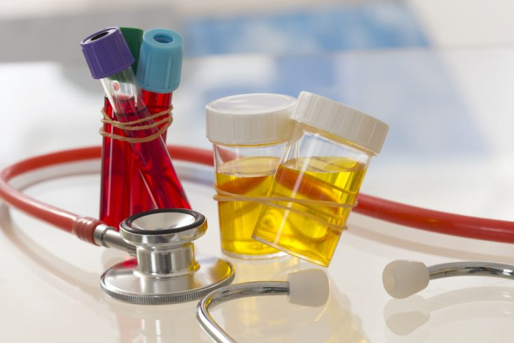 Blood And Urine Tests Developed To >> Blood And Urine Tests Developed To Indicate Autism In Children
