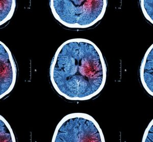 New technology could dramatically shorten diagnosis time of stroke patients