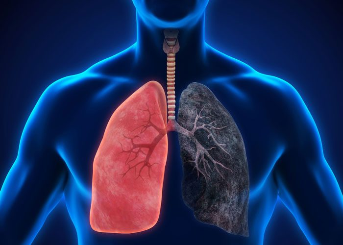 Lung function of COPD patients improved with Ultibro Breezhaler
