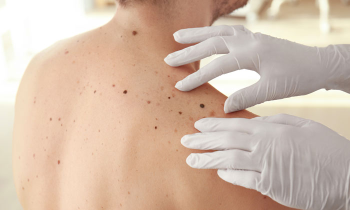 Rare melanoma type highly responsive to immunotherapy