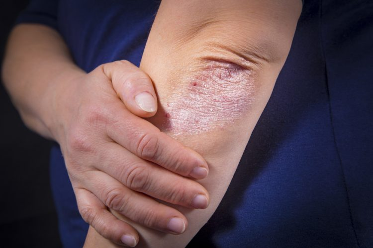 risankizumab for psoriasis