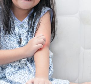 Young girl with red irritated arm