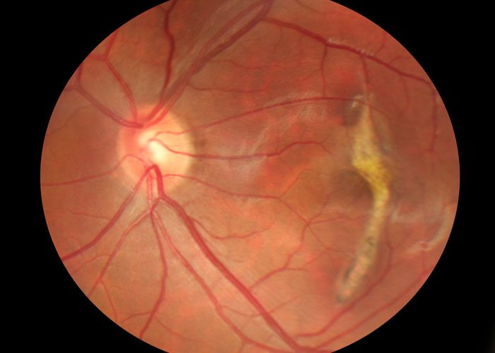 Stem Cell Therapy Shows Promise For Macular Degeneration