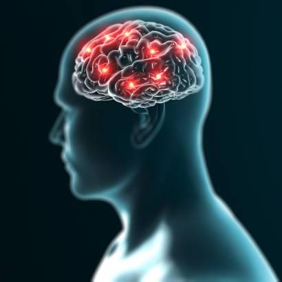 stroke reneuron
