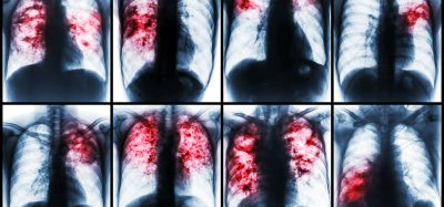 a collection of different tuberculosis patients chest x-rays