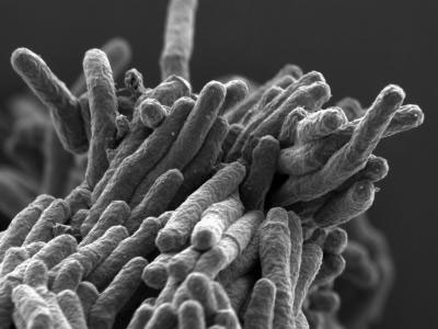 A scanning electron micrograph of Mycobacterium tuberculosis bacteria. CREDIT: Stewart Cole/EPFL